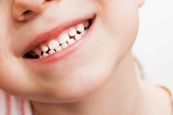 Карієс у дітей: способи профілактики у стоматолога та в домашніх умовах